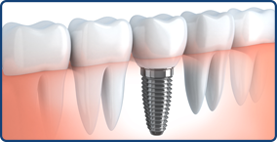 logue-oral-and-facial-surgery-implants-thm2